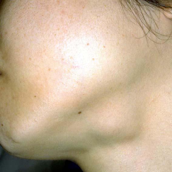 コロナ リンパ 腺腫 れ 「新型コロナ」いま知るべき5つのこと...